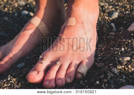Hurt feet and toes in plaster, close-up view. Sore feet from uncomfortable shoes or walking on stones poster