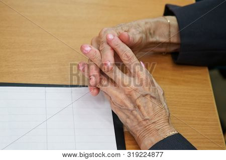 Hands Of An Elderly Woman Sitting At A Table Suffering From Stratification Of Nails. Social Problems