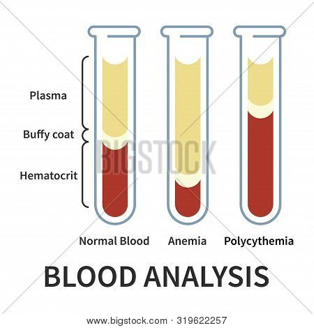 Blood Analysis Infografics. Glassware Tubes Filled Blood In Layers. Plasma And Hematocrit, Buffy Coa