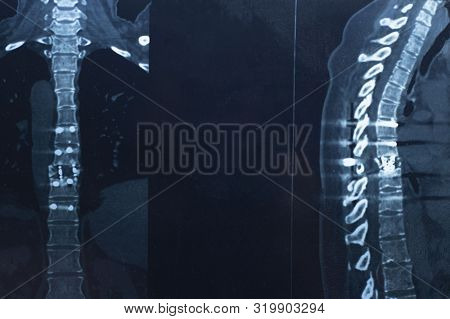 Spinal Fracture. Pins In The Spine. Thoracic Spine. Multiple Myeloma. Myeloma. Spine X-ray