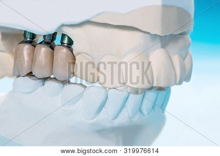 Close Up Implant Model Tooth Support Fix Bridge Implant And Crown.