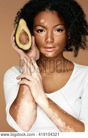Woman With Vitiligo Holds Avocado On Beige Background. Moisturize And Care For Pigmented Skin
