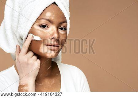 Moisturizing Skin Concept. African American Woman With Vitiligo Applies Moisturizing Cream On Her Fa