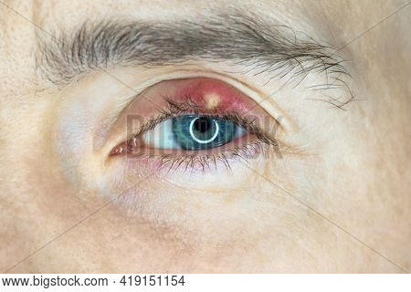 Chalazion on eye. Eyelid infection