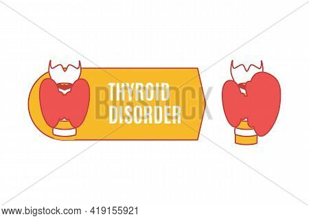 Gland With Healthy Thyroid And Hyperthyroid Disorder