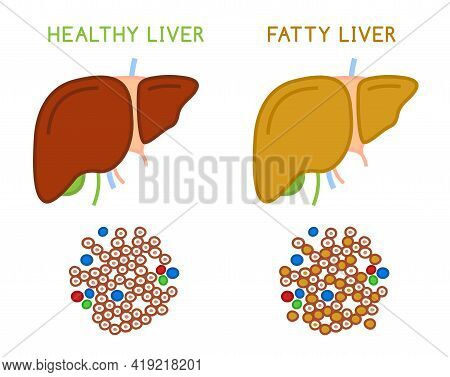 Healthy And Fatty Liver. Medical Vector Infographic.