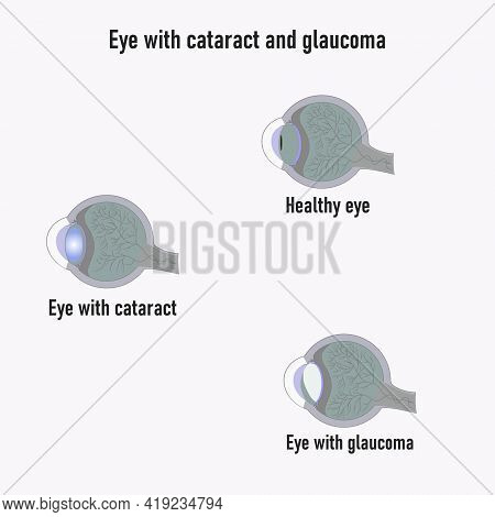 Glaucoma Eye. Development Of Glaucoma. The Structure Of The Eye. Cataract. Eye Vision Disorder.diagr