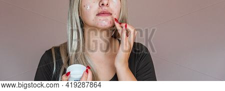 Life With Acne, Problem Skin Prone To Rashes And Acne, Scars, Concept Of Healthy Skin, Dermatology A