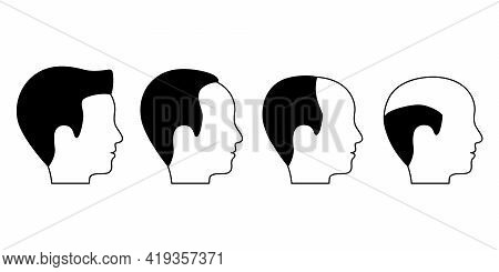 Male Stage Of Baldness, Alopecia. Hair Loss Problem Of Male. Hair Fall. Vector Flat Illustration