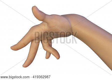 A Hand Of A Child With Chorea, A Hyperkinetic Movement Disorder. 3d Illustration Showing Brief, Irre