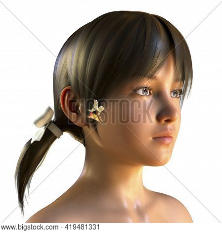 Otitis Media, A Group Of Inflammatory Diseases Of The Middle Ear, 3d Illustration Showing A Girl Wit