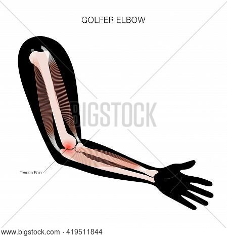 Pain In Human Arm. Medial Epicondylitis Golfer Elbow. Trauma Or Inflammation In Hand. Muscular Syste