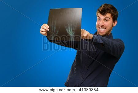 Young Man Holding X Ray Report Gesturing  On Blue Background