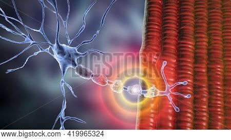 Demyelination Of Neuron, The Damage Of The Neuron Myelin Sheath Seen In Demyelinating Diseases, 3d I