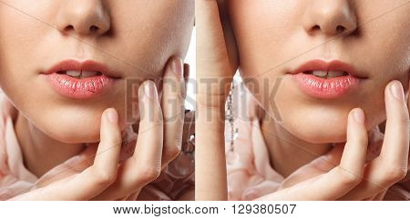 Close up of young female chapped lips before and after treatment