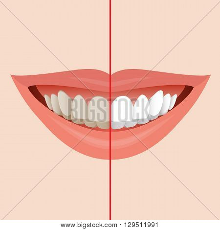 Smiling Mouth with Cleaning Teeth Before and After Bleaching treatment