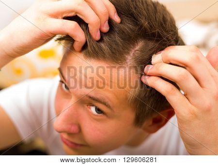 Young man having periodical hair loss and alopecia.