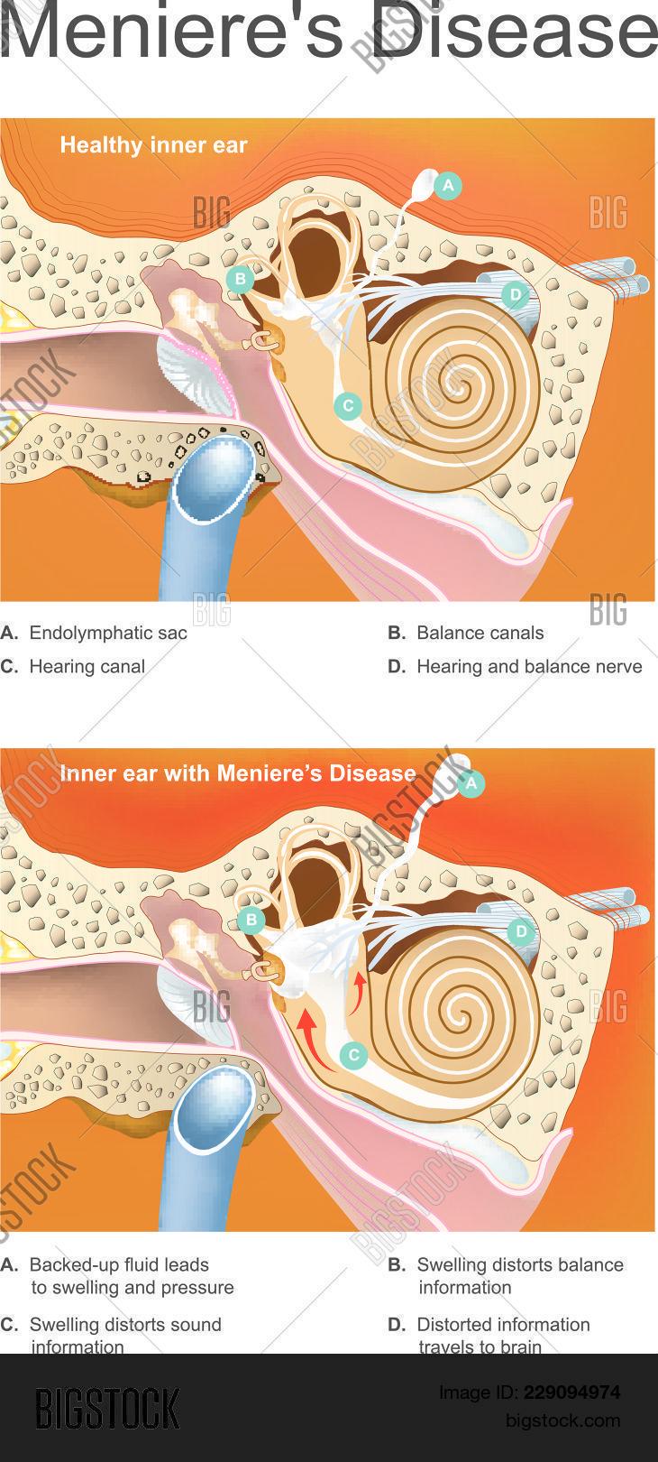 Disorder Inner Ear Vector & Photo (Free Trial) | Bigstock