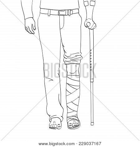 Pop Art Men Legs In Plaster, Cane And Support. Rehabilitation Means. Vector Illustration, Imitation