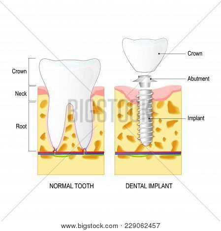 Dental Implant, And Normal Tooth On The White Background. Tooth Anatomy. Illustration Showing Closeu