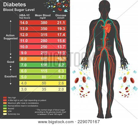 Diabetes Chart. Symptoms Of High Blood Sugar Include Frequent Urination, Increased Thirst, And Incre