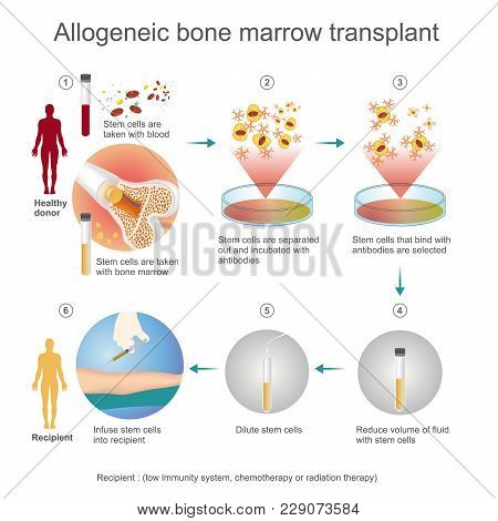 The Allogeneic Transplant Process Are Donated To The Person From Another Person, A Genetically Match