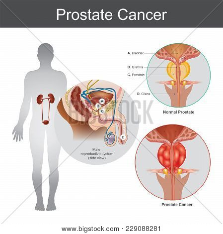 The Prostate Cancer Is The Most Common Cancer Among Men Not Skin Cancer. The Prostate Cancer That St