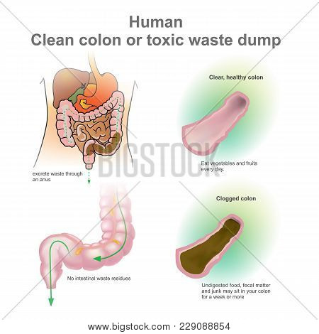 Human Clogged Colon, Healthy Colon.  Toxic Waste Dump. Excretory System Vector, Illustration.