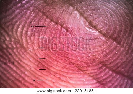 Enlarged Look Of Fingerprints. With A Millimeter Scale.