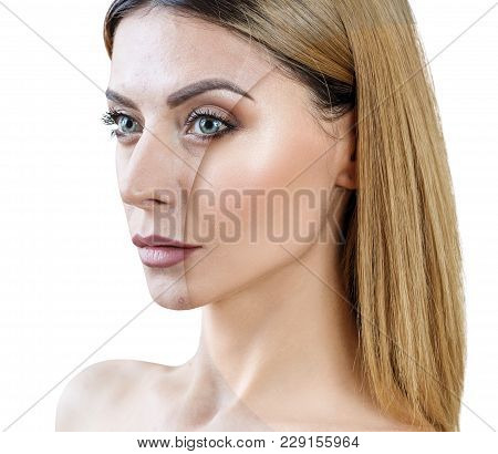 Adult Woman With Acne Before And After Treatment And Make-up. Skin Care Concepts