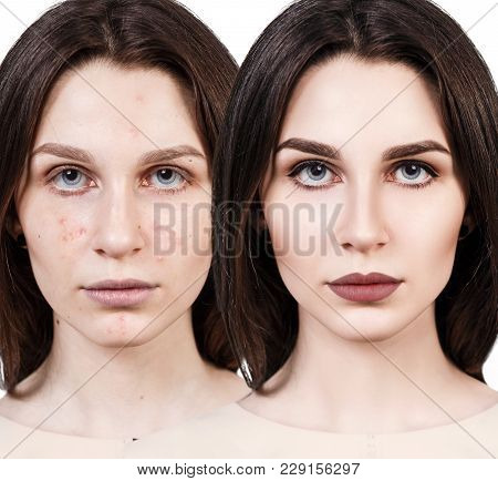 Young Girl With Acne Before And After Treatment And Professional Make-up.