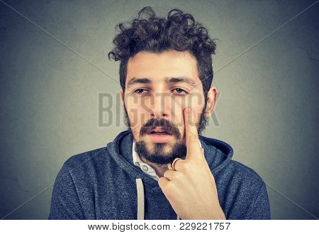 Young Bearded Man Having Puffy Eyes And Sick After Sleepless Night.