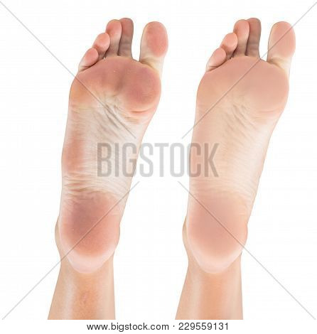 Female Feet With Dry Skin And Cracks Before And After Treatment And Spa. Isolated On White Backgroun