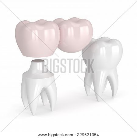 3d Render Of Teeth With Dental Cantilever Bridge Isolated Over White Background