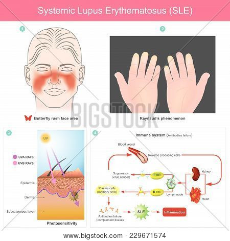 The Patients Skin Inflammation From The Light. Illustration..because Of Loss Of Tolerance To Self Le