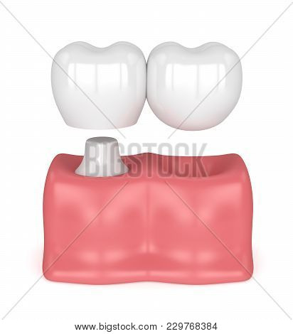 3D Render Of Teeth With Dental Cantilever Bridge