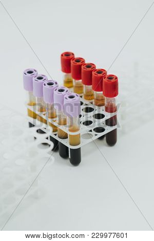 Medical Equipment. Test Tubes Of Centrifuge Machine With Blood And Plasma In Hematology Laboratory.