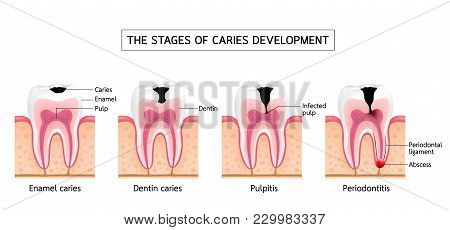Stages Of Caries Development. Enamel Caries, Dentin Caries, Pulpitis And Periodontitis. Dental Care