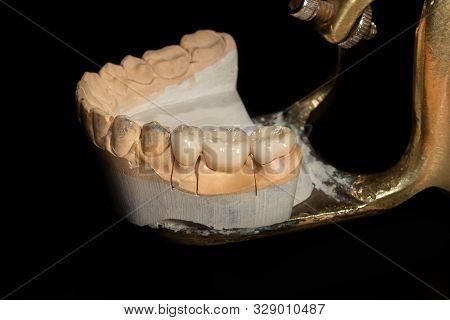 Dental Veneers, Ceramic And Zirconium Crowns Of Teeth Close-up Macro Isolate On Black Background. La