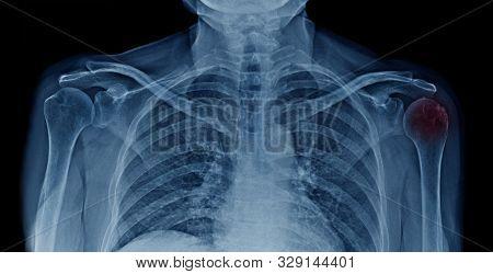 Osteoarthritis Head Of Humerus