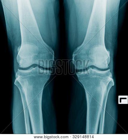 X-ray Image Oa Knee Both Side