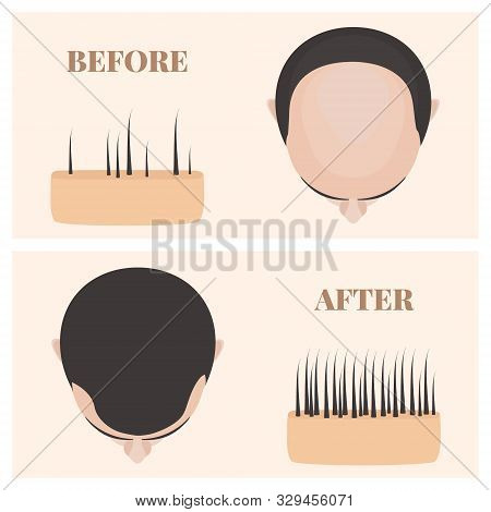 Man In Top View Before And After Hair Loss Treatment
