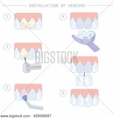Dental Treatment And Care. Installation Of Veneers, Stages Of Work. Instructions For Dentists. Illus