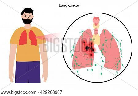 Lung Cancer Stage. Respiratory System Disease In Man Silhouette. Tumor, Inflammation And Metastasis