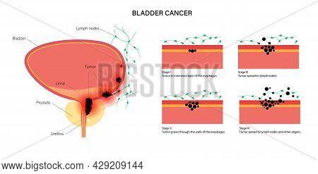 Bladder Cancer Stages Anatomical Poster. Bladder, Urethra, Lymph Nodes And Prostate In Male Body. In