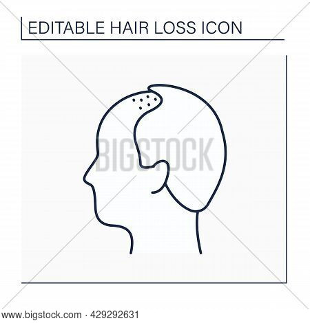 Hair Loss Line Icon. Man Loses Hair. Male Pattern Baldness. Alopecia Concept. Isolated Vector Illust