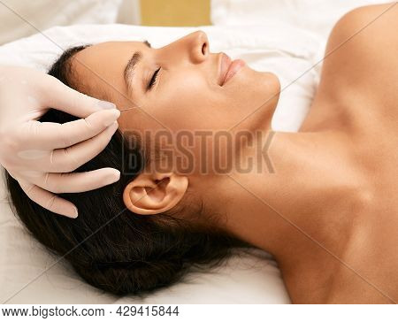 Acupuncture Facelift. Facial Acupuncture Helps Woman Eliminate Wrinkles, Frown Face Lines