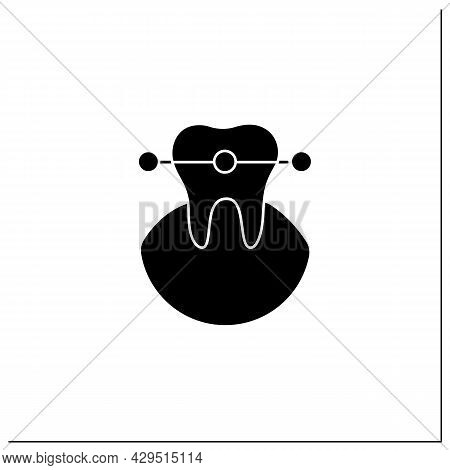 Tooth Braces Glyph Icon. Tooth Care Fixed And Correct Bite And Realign Teeth Over Time. Teeth Care H