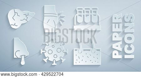 Set Virus, Test Tube With Blood, Runny Nose, Hair Covering Skin, Abdominal Bloating And Hepatitis Vi