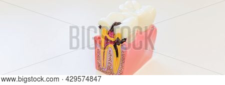 Dental Decay Model Shows Progress Of Decay.an Example Of Dental Disease. Dentistry. Caries On The To